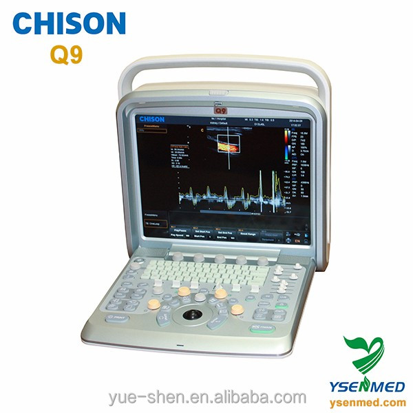 chison Q9 high quality 3d 4d color doppler ultrasound machine price