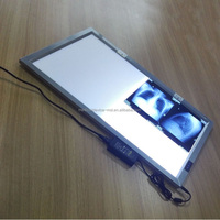 Single LED brightness x ray film viewer Negatoscope for hospitals/Negatoscope x ray film viewer