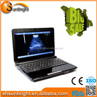 Digital ultrasound better than chison ultrasound