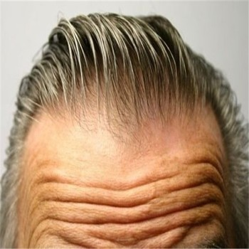 Men's super thin skin toupee invisible natural thin skin for men, hair replacement system