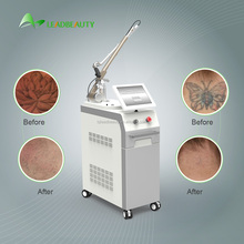 q-switched nd yag laser pigment tattoo removal machine