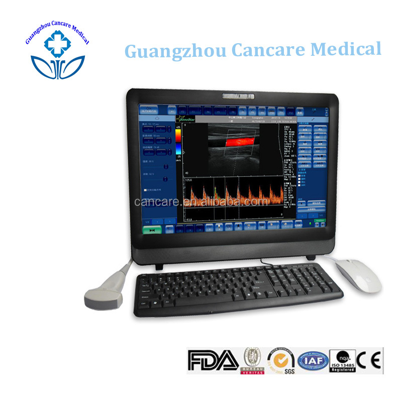 price of the pc ultrasound machine scanner for sale