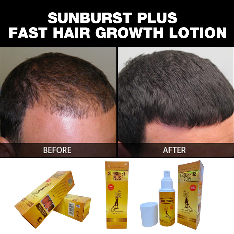 original Sunburst hair growth - Sunburst Plus hair grow lotion