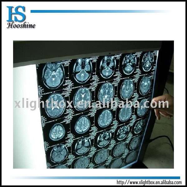 Medical LED View Lamps /Film Negatoscope/ X Ray View Box