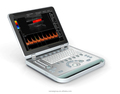 SW-1300 Portable Digital Ultrasound//Video Ultrasound // Digital Video Colposcope