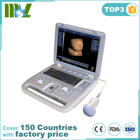 Dedicated 4D Ultrasound machine Portable 3D 4D Color Doppler Ultrasound MSLCU18W