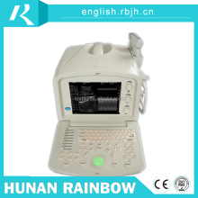 Cheap Sonography Ultrasound Scanner Price