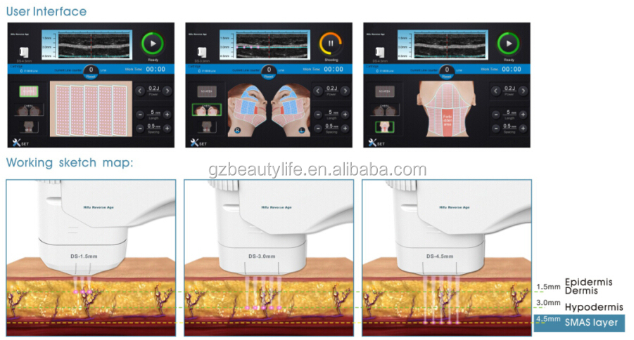 HIFU system/equipped with 3 transducers/10-inch LCD touchscreen/lifespan up to 8000 shots
