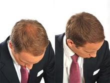 2016 New solution for thin hair Hair loss treatment hair building fiber