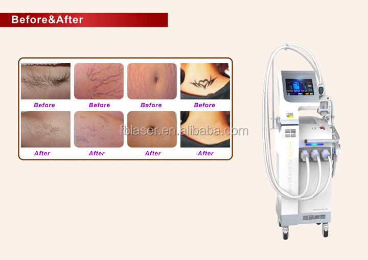Hot sale SHR IPL Nd Yag Laser Fractional RF Machine