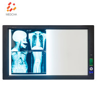 LED X ray medical film viewer with film sensor