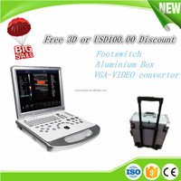 High performance low cost 3D portable ultrasound machine / 4D live ultrasound / portable color doppler ultrasound system