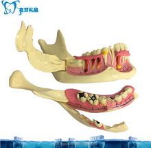 Mandible right side orgen teaching model dental models
