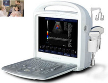 Laptop NEW Full Digital Portable Ultrasound Machine/Ultrasonic Scanner