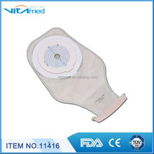 disposable Anorectal fistula bag Stool bags False anal esophagus11416