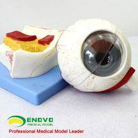 Giant Eye Model, Five Life Size 8 Parts Eyeball Structure Anatomy Model , ENT Doctor-patient Communication Anatomical Model