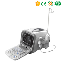 Cheapest Clinic 2d diagnostic ultrasonic gel machine ultrasound portable for human
