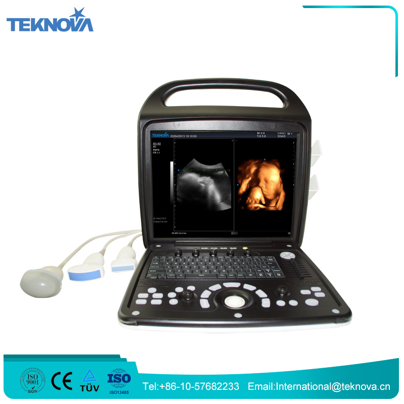Best Quality 4D Portable Color Doppler Ultrasound Machine Price