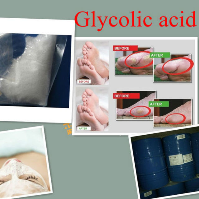 free chlorine product Glycolic acid 70% in cosmetic