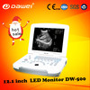 2017 most popular High performance&low cost 4D portable ultrasound machine with best quality and low price