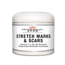 Best Acne Scar Cream and Stretch Marks Removal Cream- Breakthrough Treatment for Acne & Other Scars Light Cream