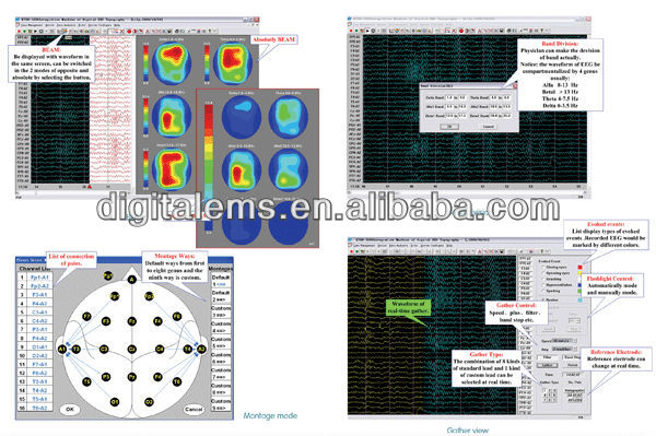 2016 hot selling eeg medical equipment