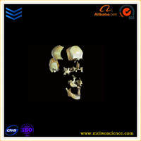 medical research model separation of the skull bone plastination process johannesburg