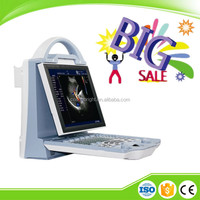 Promotional price digital doppler ultrasound portable color doppler diagnostic device