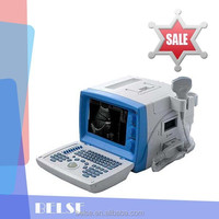 PC laptop ultrasound scanner portable type