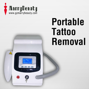 professional laser tattoo removal machine