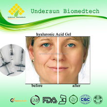 High quality Anti Aging Remove Wrinkle Hyaluronic Acid Gel Injection Ha Dermal Filler with low price