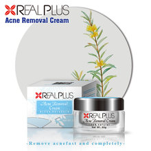 OEM Beauty Products Malaysia Free Sample Acne Pearl Cream