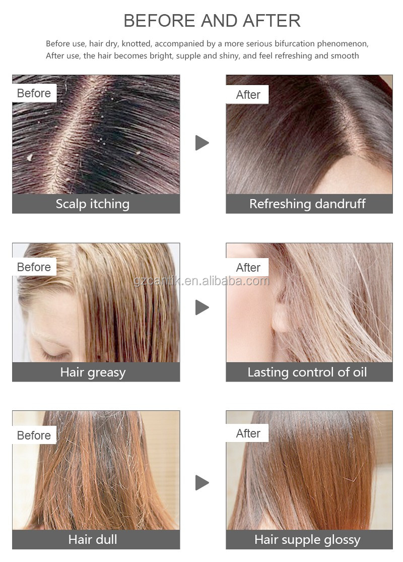 wholesale professional hair loss hair shampoo
