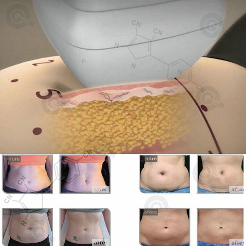 lipolysis is / ultrasound machine / laser liposuction procedure