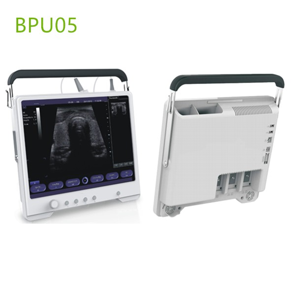 Touch Screen Portable Ultrasound Machines , Portable ultrasound machines , Portable ultrasound machine price , used Portable ultrasound machine , best laptop ultrasound machine , Portable ultrasound factory sell directly , price from medical ultrasound , medical scan machines ,ultrasound echo machine , ultrasound scanner , pregnancy test ultrasound machines , portable ultrasound scanner , mindry ultrasound scanner , cheapest usg , low price ultrasound scanner