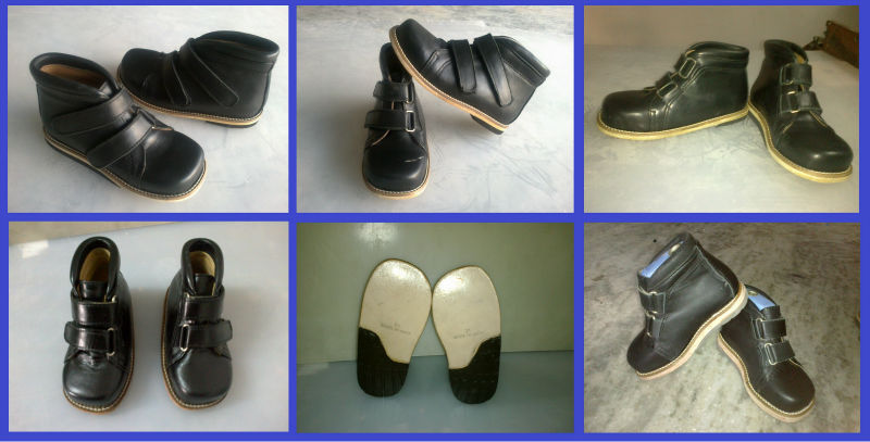 Orthopedic Corrective Shoe