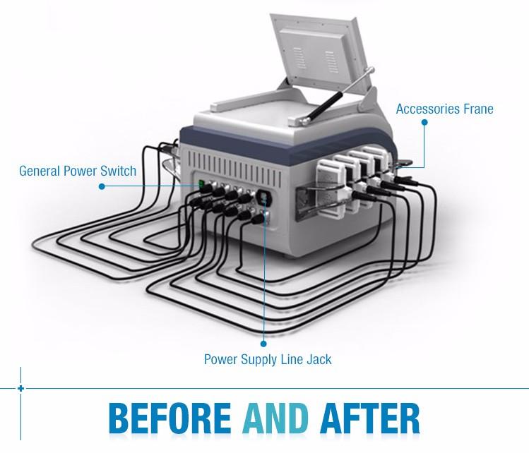 lipo laser light machine for sale buy lipo light machine for sale. Black Bedroom Furniture Sets. Home Design Ideas
