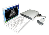 Mini Ultrasound Box with full-digital optional 3D software
