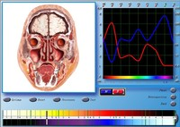 Latest Portable Biofeedback Devices spanish 3D NLS
