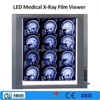 Medical x ray illuminator negatoscope, x-ray film viewer