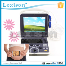 4D ultrasound machine price& trolley ultrasound scanner color doppler PRUS-WK60