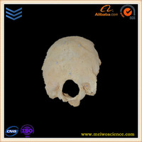 real natural occipital bone human skeletons for medical research