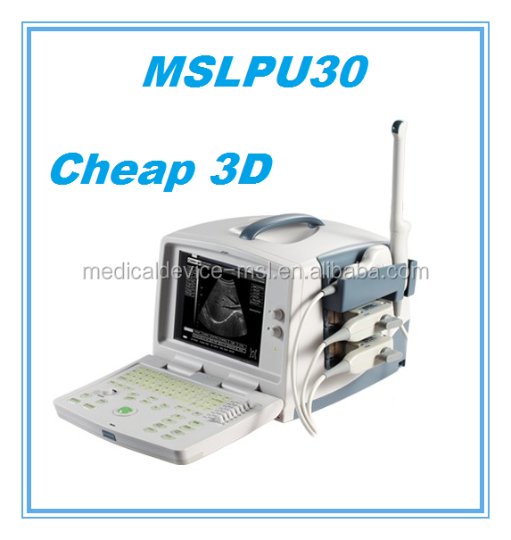 Cardiac ultrasound therapy equipment/price ultrasound scanner/ultrasound baby monitor