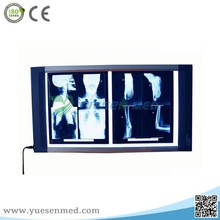 YSX1705 double connections x ray led film viewer