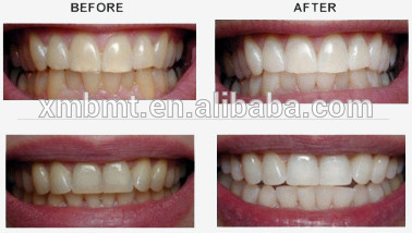 Zero Peroxide Teeth Whitening Gel 3ml/5ml/10ml , CE & FDA Approved
