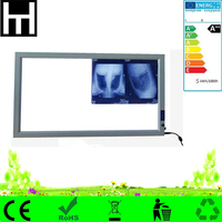 ultra thin adjustable brightness auto-induction led medical negatoscope film x ray viewer single double led x-ray viewer