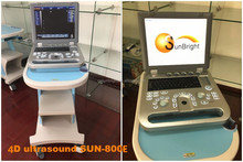High quality Portable Ultrasound scanner SUN-800E with 4D video