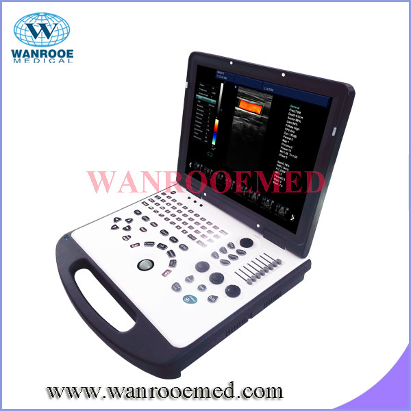 USC60 Cardiac Vascular Color Doppler Portable Ultrasound