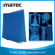 175um Blue Base Digital Inkjet Printing Medical X-ray Film, Blue Medical Imaging Film