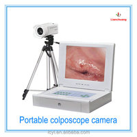 2015 hot sale china portable vedio colposcope